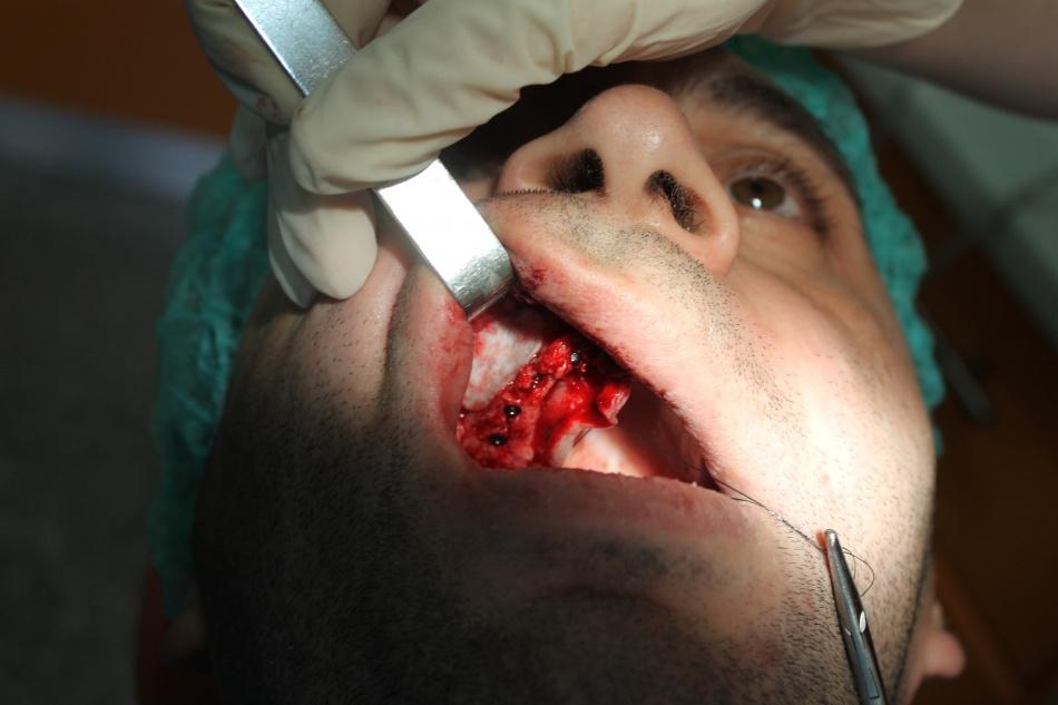 Insertia implanturilor; Inchidere cu membrana colagen