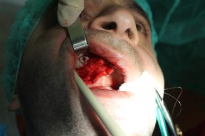 Sinus lift cdr.1 si inserare implanturi